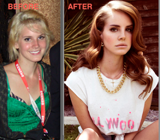 lana_del_rey_plastic-surgery-before-after.png
